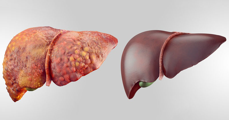 9 metode pentru detoxifierea ficatului
